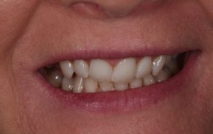 example of a narrow smile