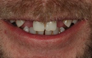 replace gaps in the mouth