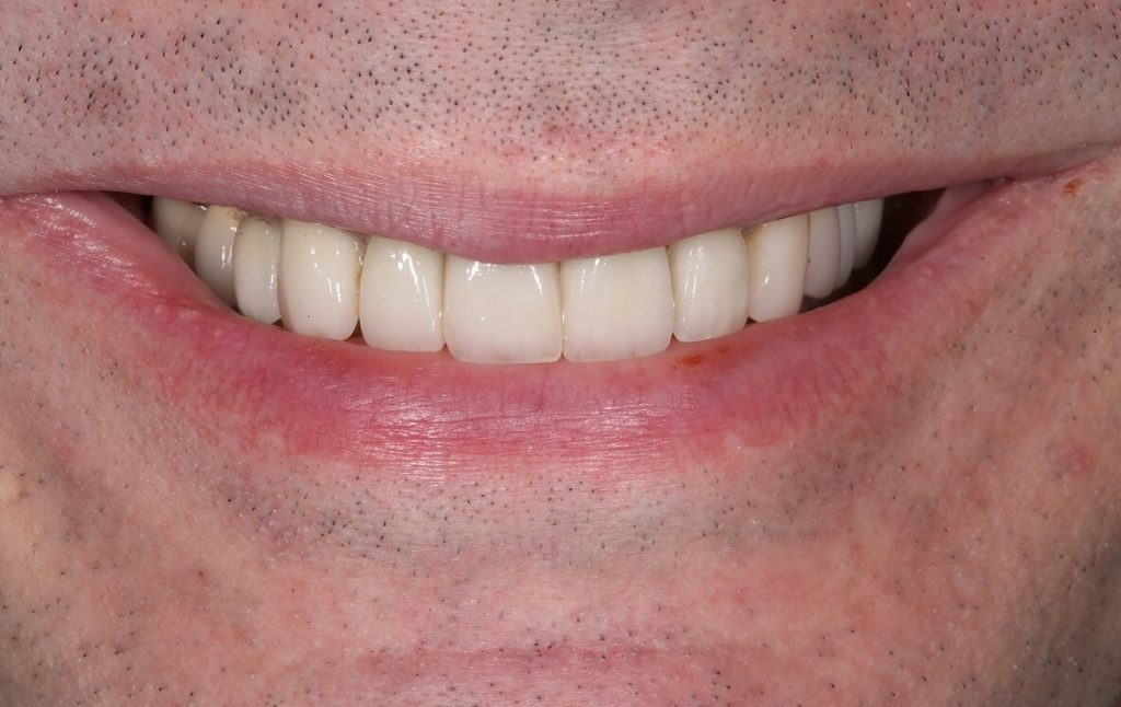 before and after of dental implantation
