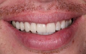 the impressive transformation after veneers are applied