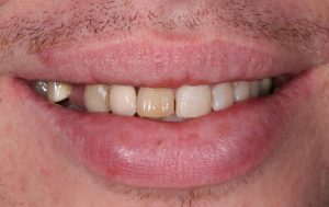 patient exhibiting strong signs of discolouration, decay and a missing tooth