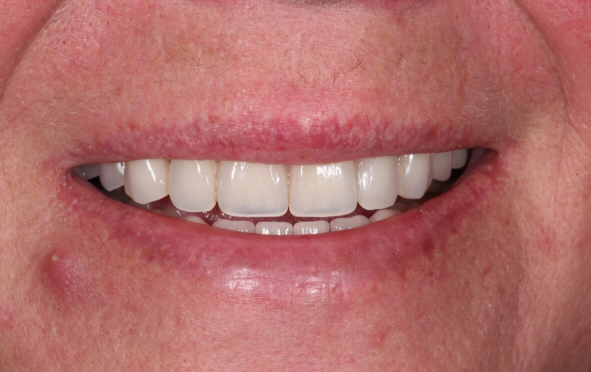 At Bespoke Smile our work is guided by the artistry of dentistry.