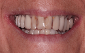 major discolouration affecting the patient's oral condition