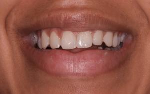 Diastema can be treated with veneers