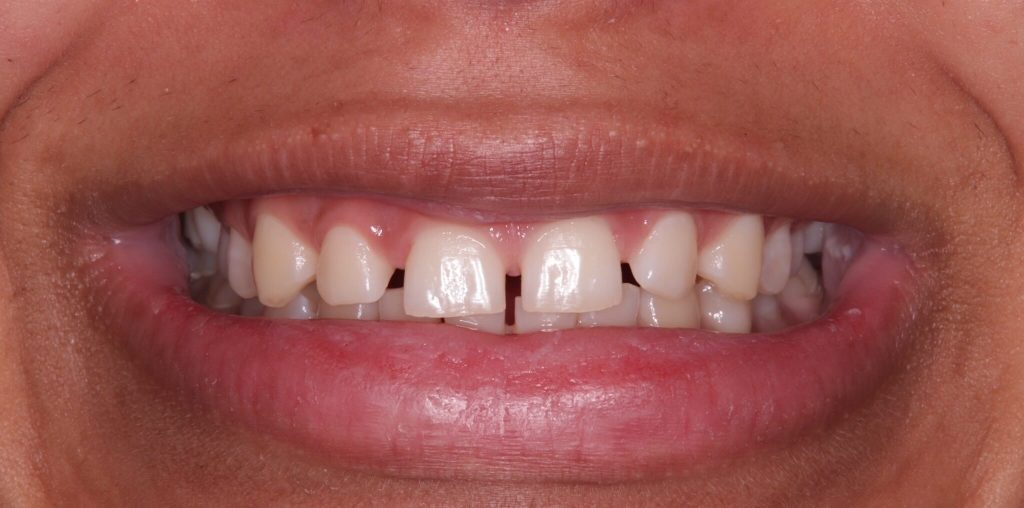 gaps in your mouth can cause you to be self conscious