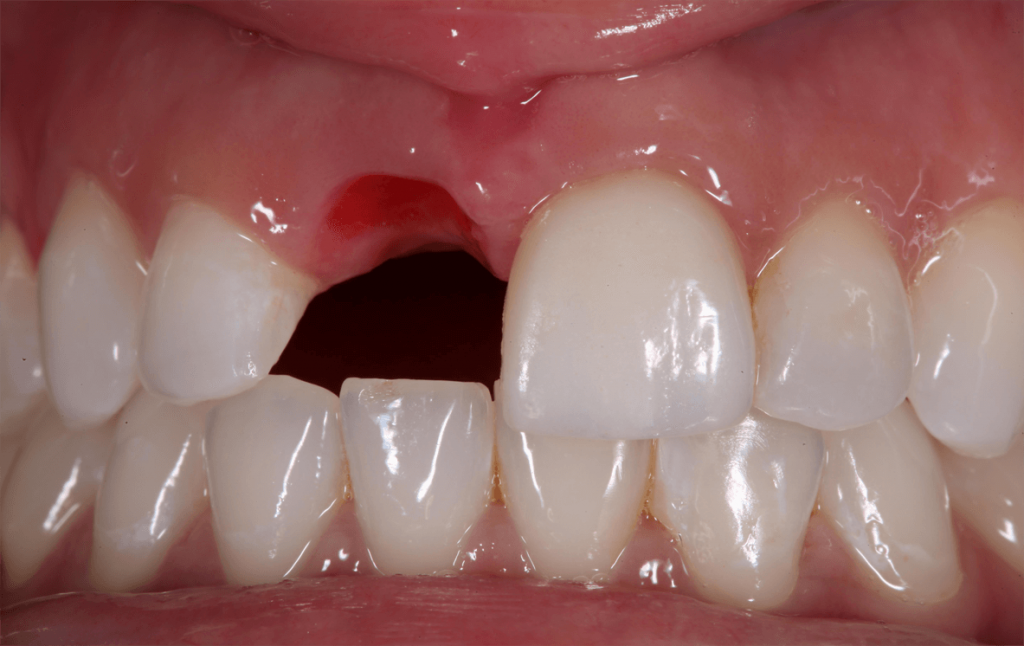 Missing teeth, solve gaps in your mouth