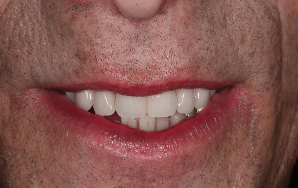 dental implants after placement