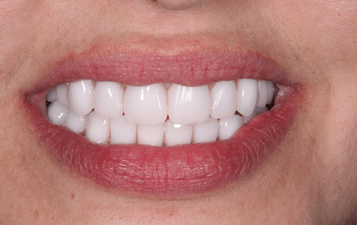 before and after veneer procedure