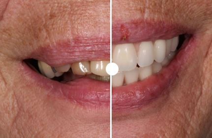 see the finished results of implantation