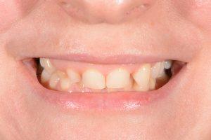 short teeth before