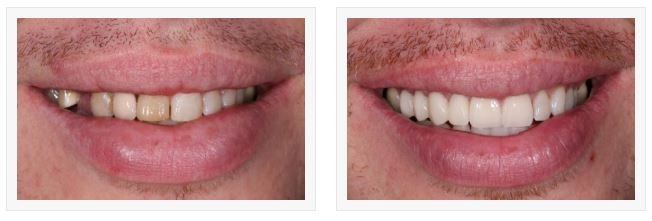 the surprising and impressive difference that veneers can make