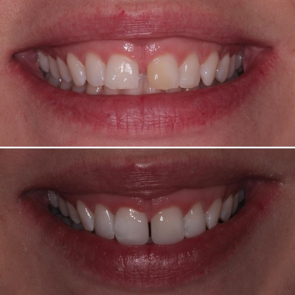 Composite Bonding Treatment - High Quality Dentistry
