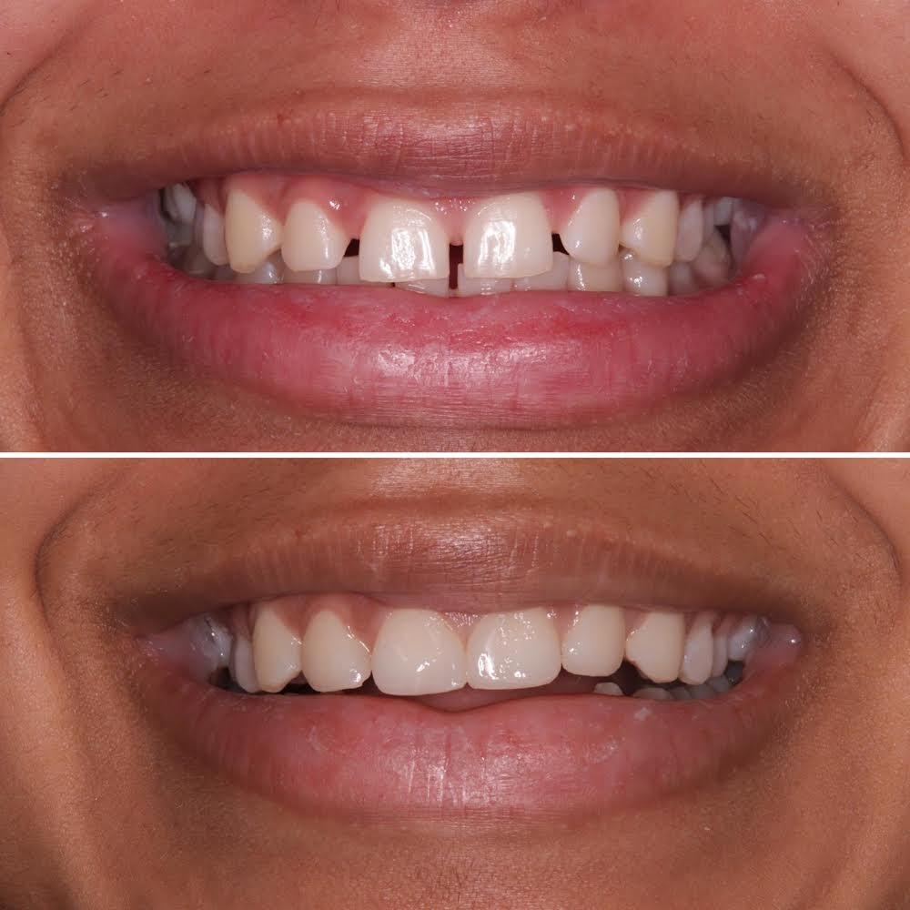 What Is Composite Bonding? | Before And After