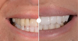 eradicate yellow teeth stains and discolouration