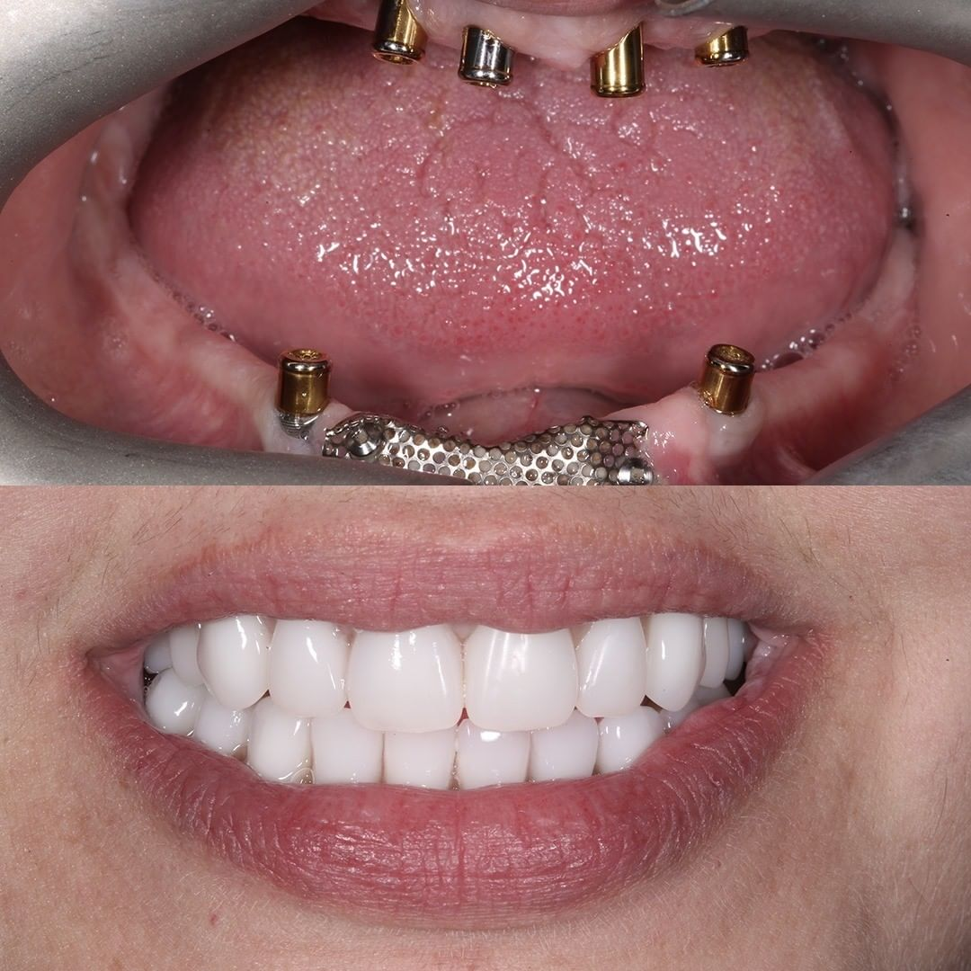 fixing faulty implants