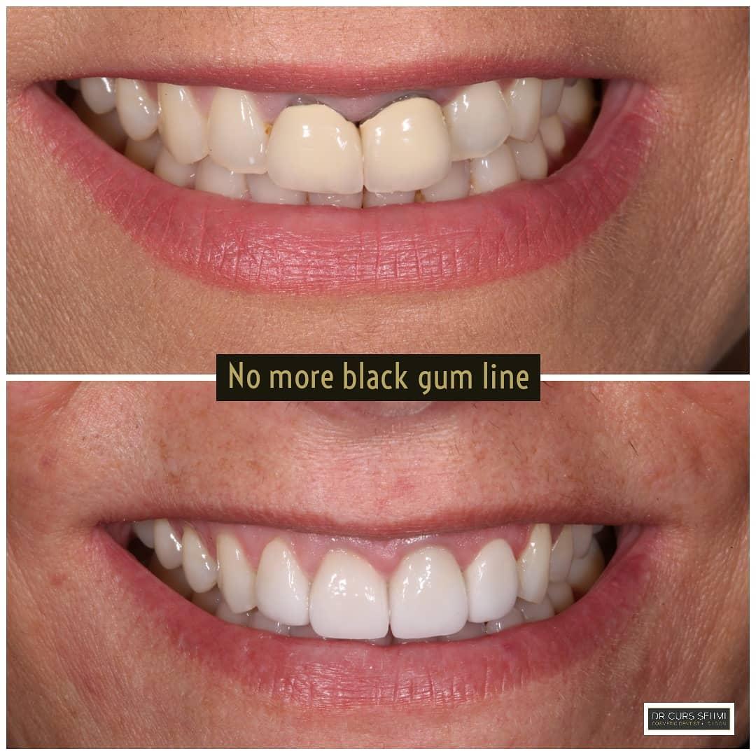 no more black gum lines