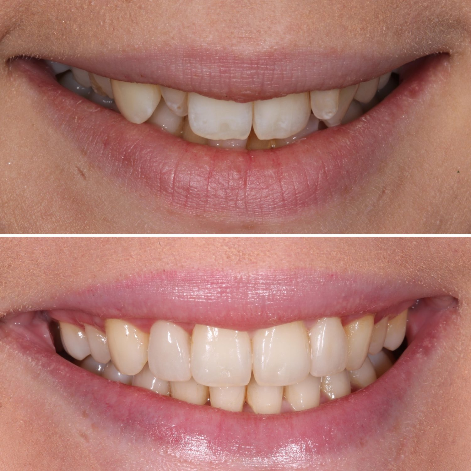invisalign is easy and fast