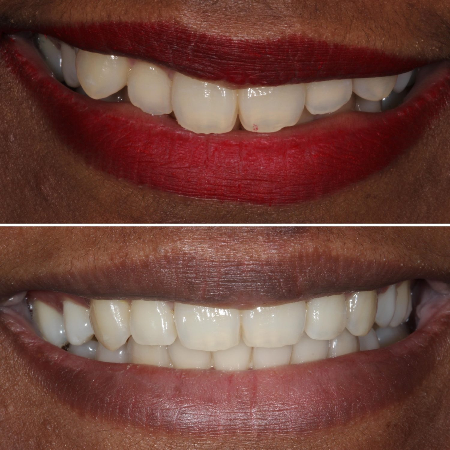 cosmetic braces before and after