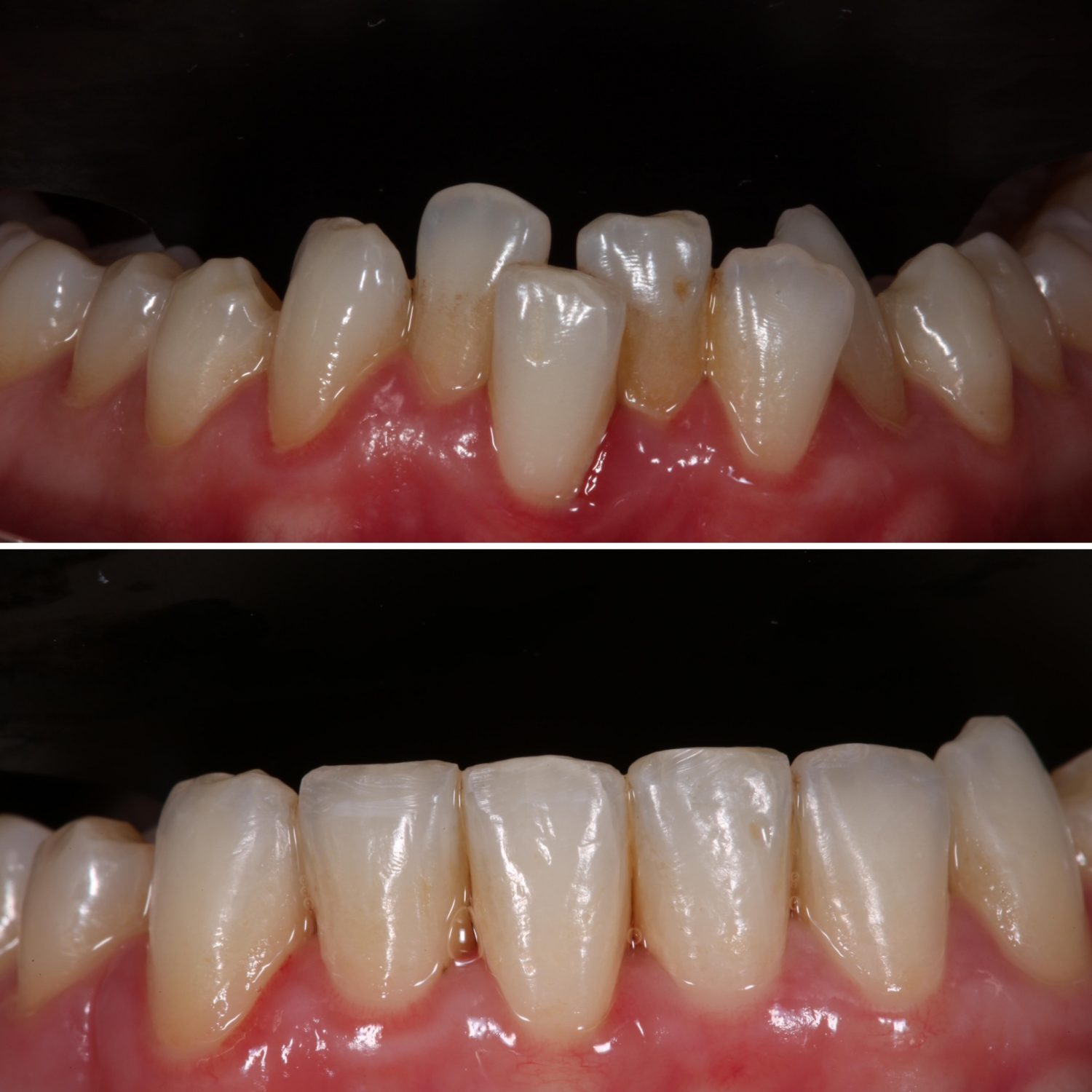 crooked teeth made straight in half the time
