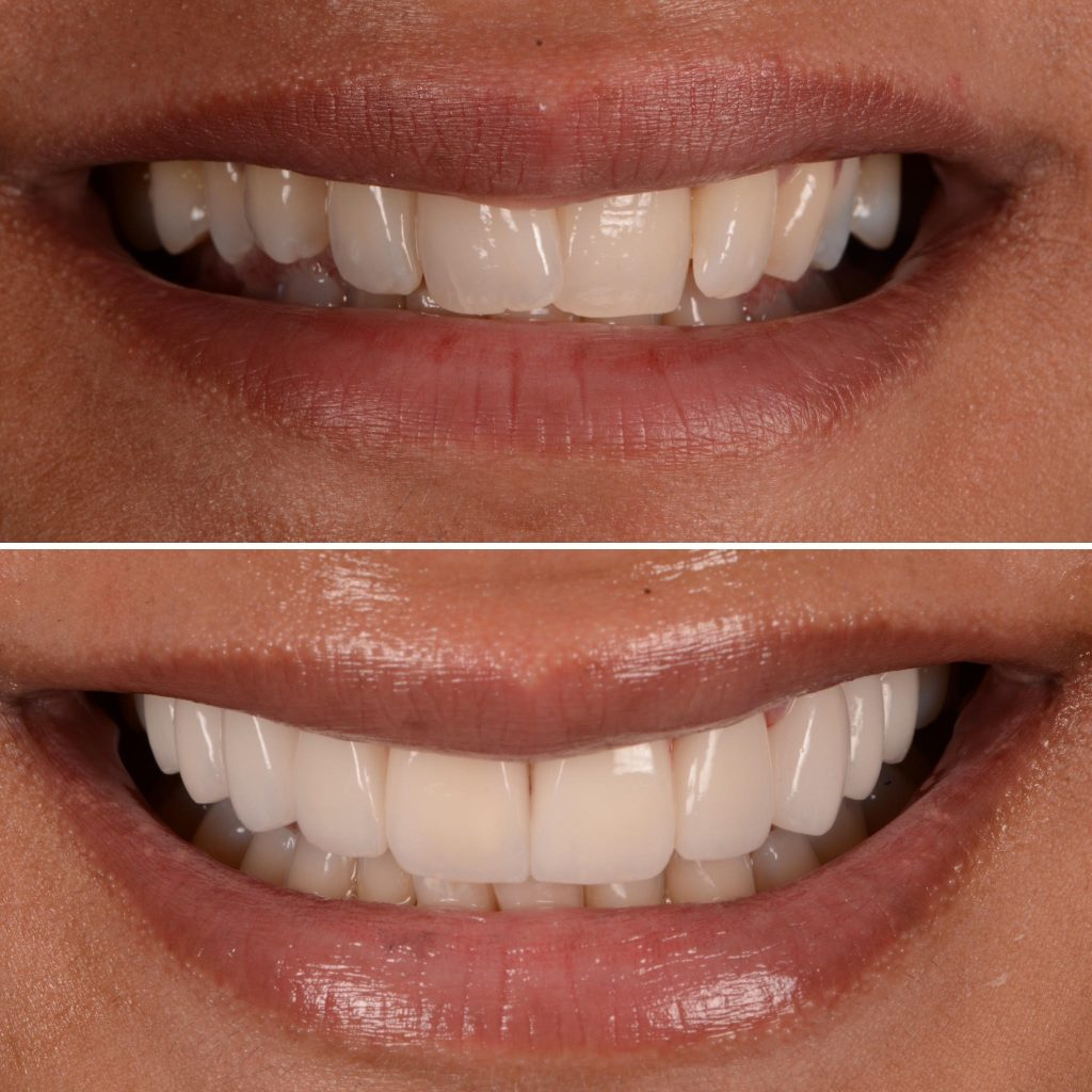 wedding day smiles before and after